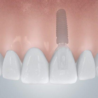 CAMLOG_Einzelzahnluecke_mit_Implantatversorgung_c